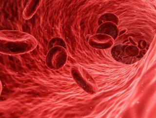 Jak poprawić krążenie krwi? Dieta to podstawa!